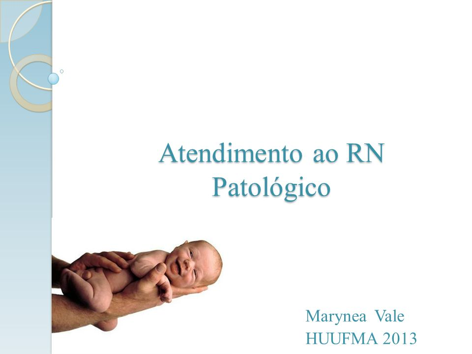 Atendimento ao RN Patológico Marynea Vale HUUFMA 2013