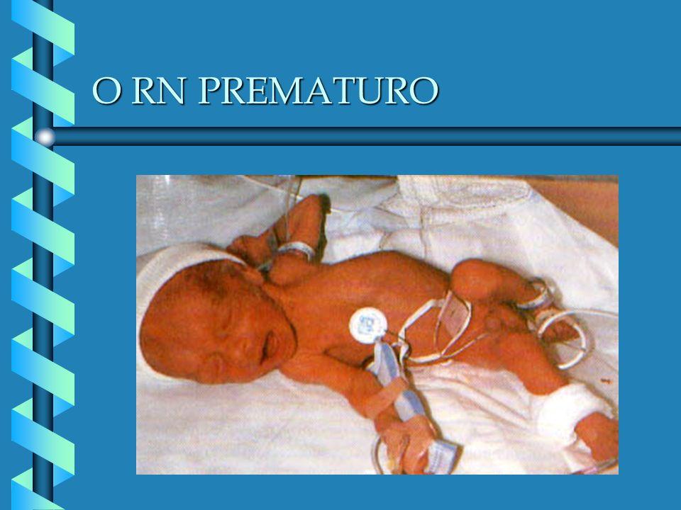 O RN PREMATURO PATOLOGIAS: DISTÚRBIOS RESPIRATÓRIOS Síndrome da angústia respiratória do RN Apnéia