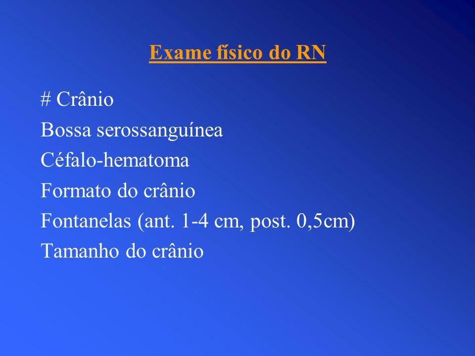 Exame físico do RN # Crânio Bossa serossanguínea Céfalo-hematoma Formato do crânio Fontanelas (ant. 1-4 cm, post. 0,5cm) Tamanho do crânio