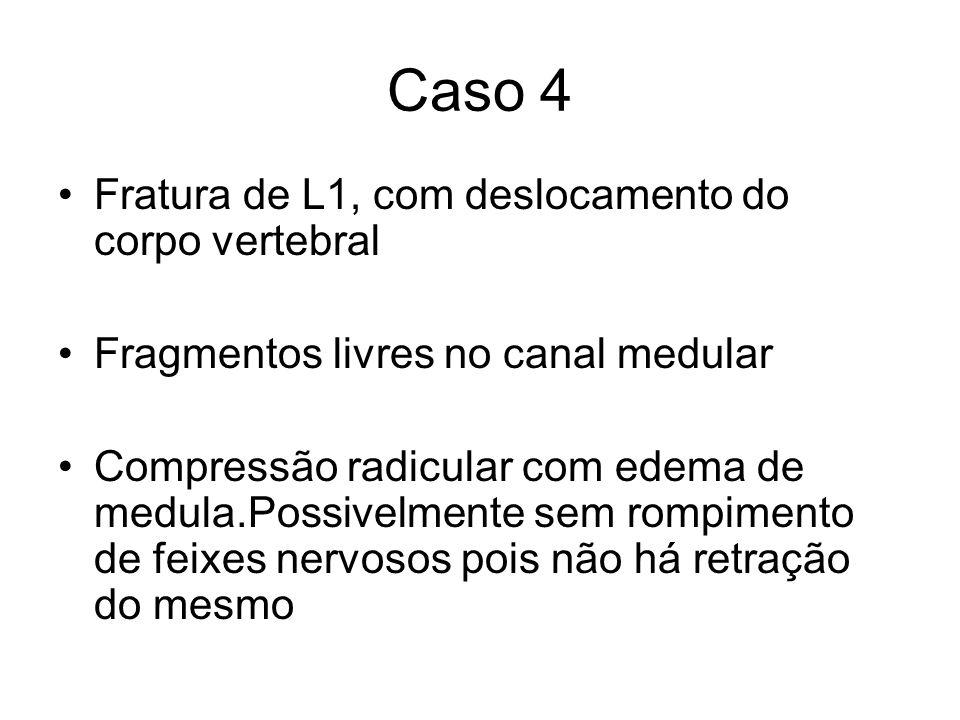 Caso 4 Fratura de L1, com deslocamento do corpo vertebral Fragmentos livres no canal medular Compressão radicular com edema de medula.Possivelmente se