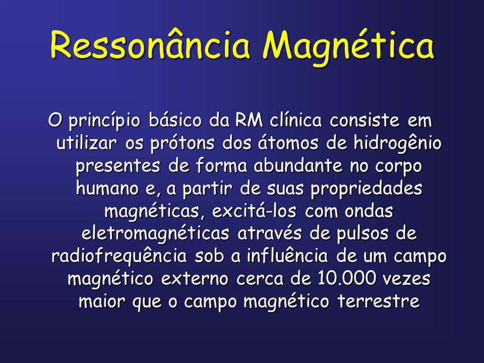 Ressonância Magnética O princípio básico da RM clínica consiste em utilizar os prótons dos átomos de hidrogênio presentes de forma abundante no corpo