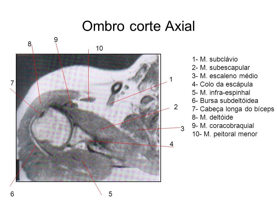 Ombro corte Axial 1 2 7 8 9 10 6 4 3 5 1- M. subclávio 2- M. subescapular 3- M. escaleno médio 4- Colo da escápula 5- M. infra-espinhal 6- Bursa subde