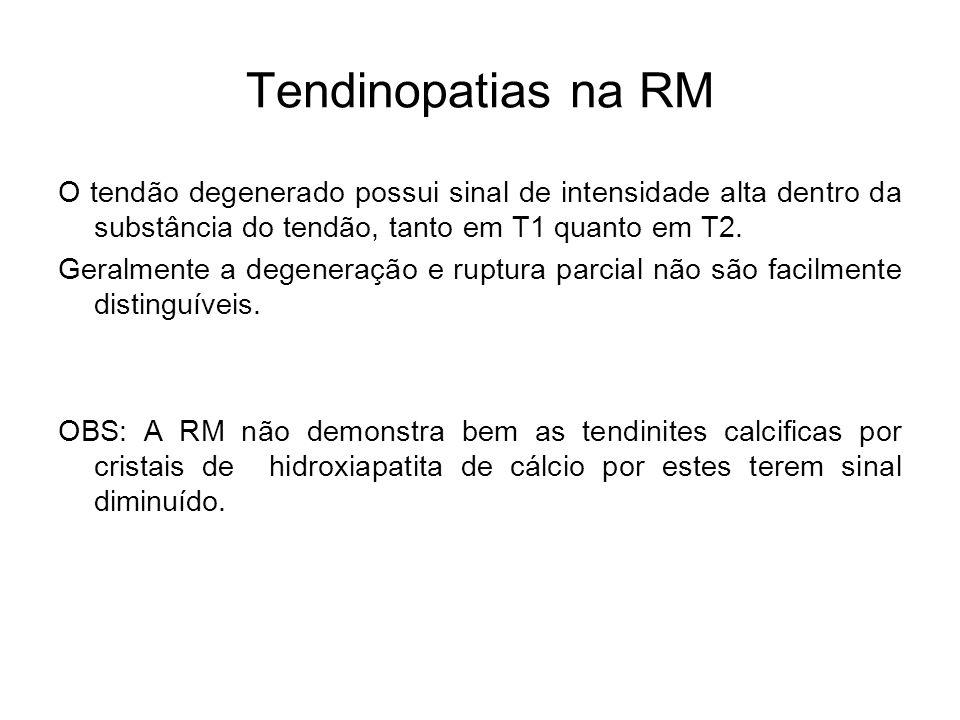 Tendinopatias na RM O tendão degenerado possui sinal de intensidade alta dentro da substância do tendão, tanto em T1 quanto em T2. Geralmente a degene