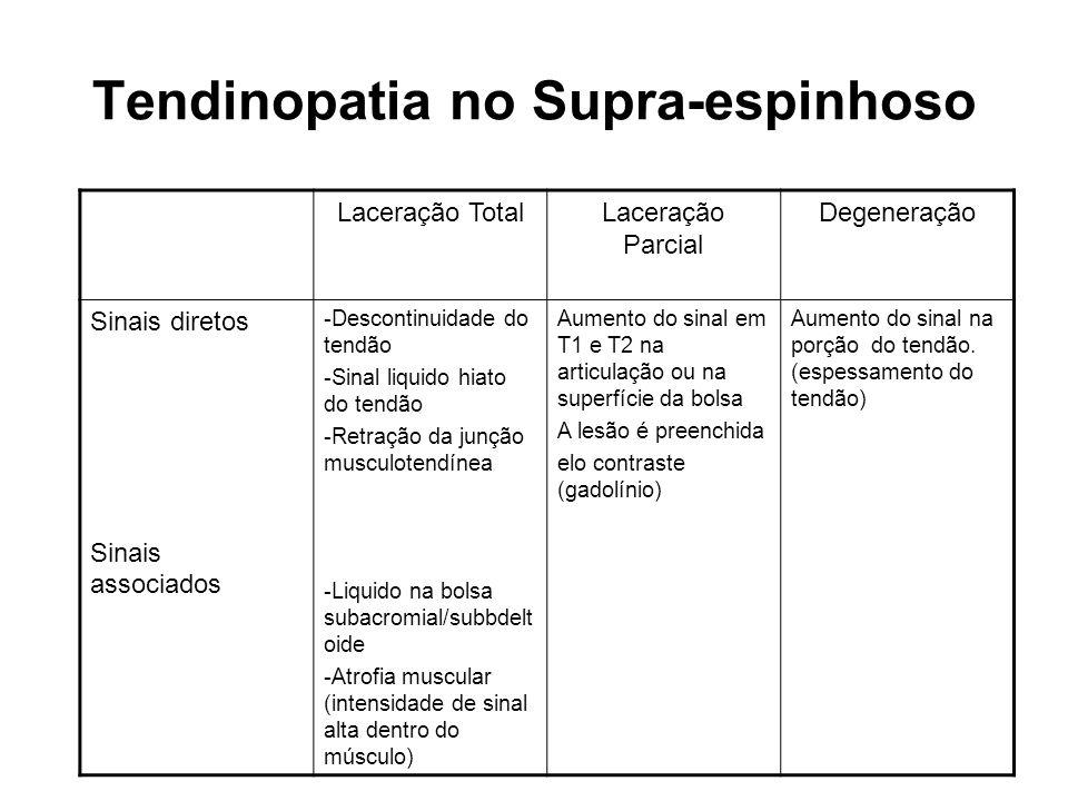 Tendinopatia no Supra-espinhoso Laceração TotalLaceração Parcial Degeneração Sinais diretos Sinais associados -Descontinuidade do tendão -Sinal liquid