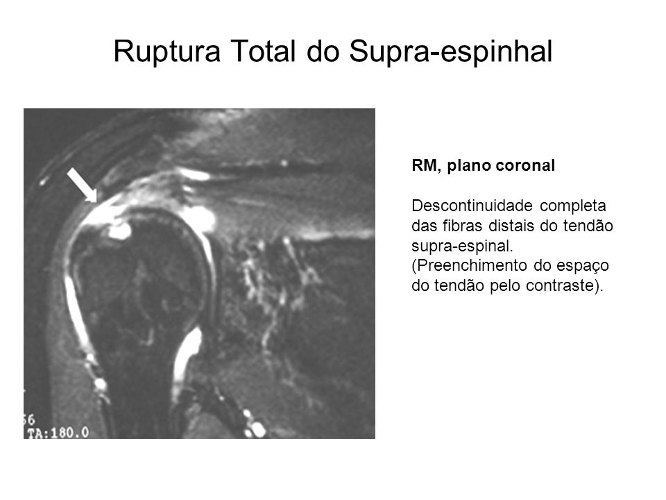 Ruptura Total do Supra-espinhal RM, plano coronal Descontinuidade completa das fibras distais do tendão supra-espinal. (Preenchimento do espaço do ten