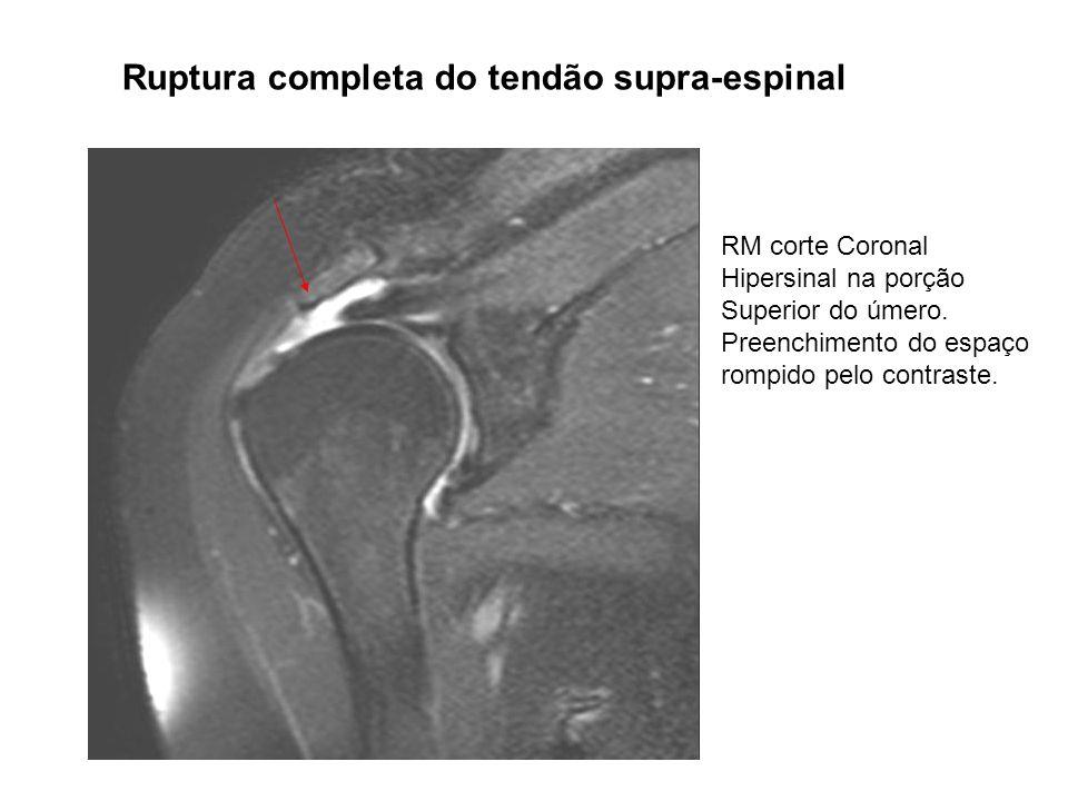 Ruptura completa do tendão supra-espinal RM corte Coronal Hipersinal na porção Superior do úmero. Preenchimento do espaço rompido pelo contraste.
