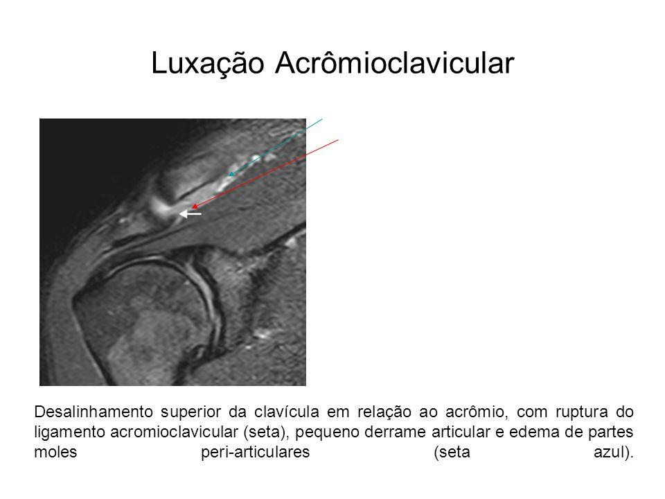 Luxação Acrômioclavicular Desalinhamento superior da clavícula em relação ao acrômio, com ruptura do ligamento acromioclavicular (seta), pequeno derra