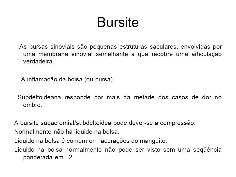 Bursite As bursas sinoviais são pequenas estruturas saculares, envolvidas por uma membrana sinovial semelhante à que recobre uma articulação verdadeir