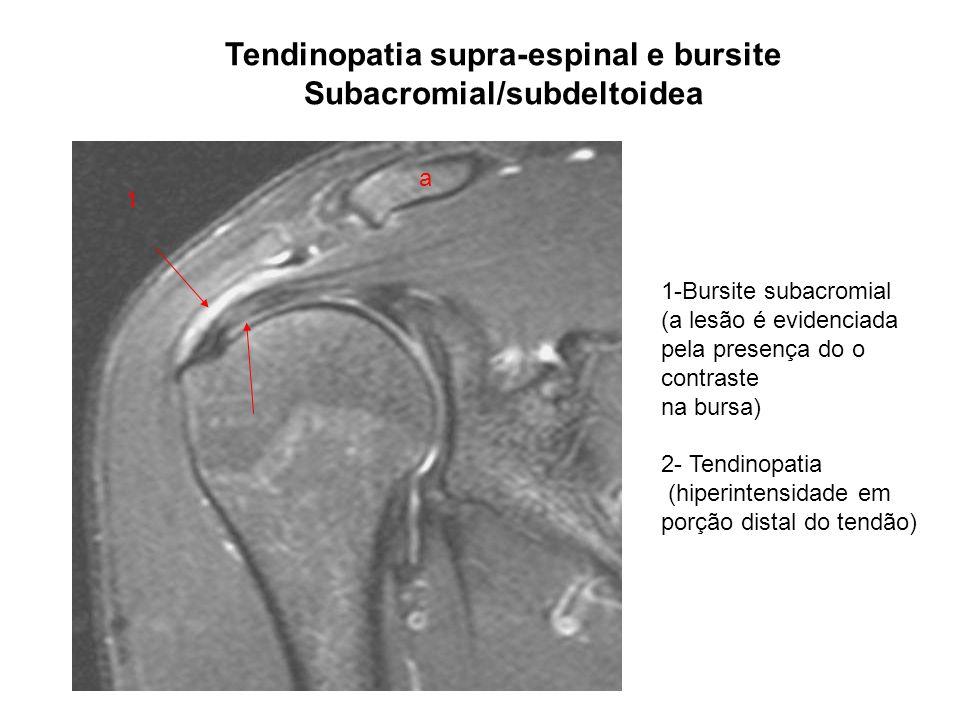 Tendinopatia supra-espinal e bursite Subacromial/subdeltoidea a 1-Bursite subacromial (a lesão é evidenciada pela presença do o contraste na bursa) 2-