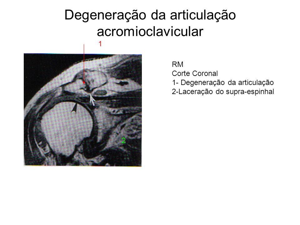 Degeneração da articulação acromioclavicular RM Corte Coronal 1- Degeneração da articulação 2-Laceração do supra-espinhal 1 2