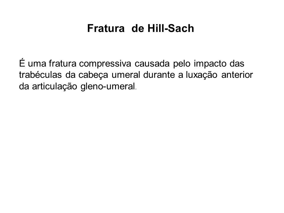 Fratura de Hill-Sach É uma fratura compressiva causada pelo impacto das trabéculas da cabeça umeral durante a luxação anterior da articulação gleno-um