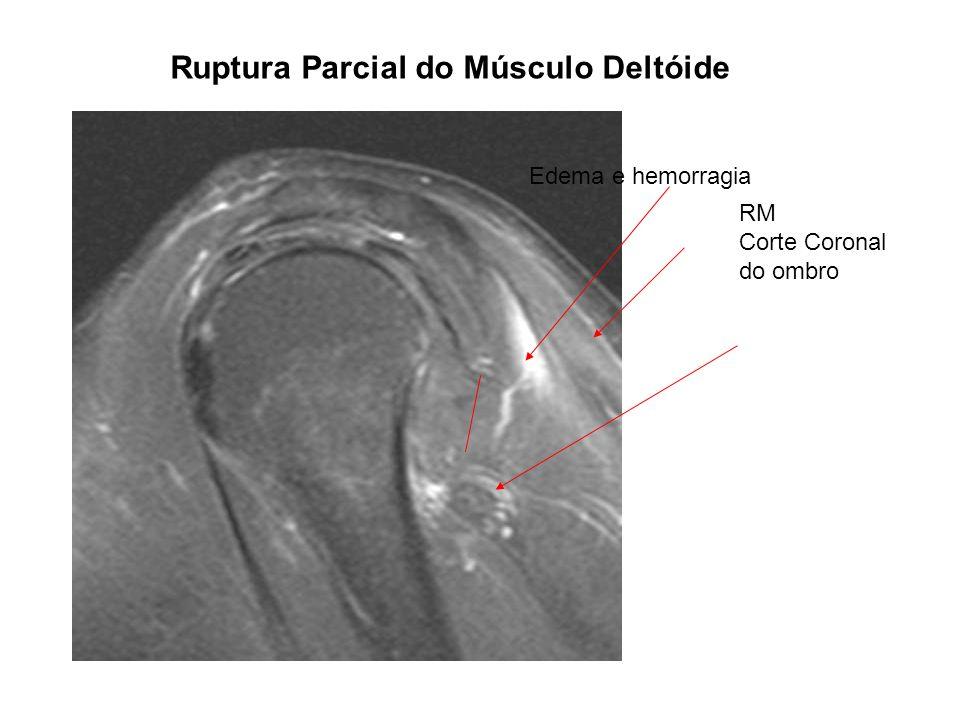 Ruptura Parcial do Músculo Deltóide RM Corte Coronal do ombro Edema e hemorragia