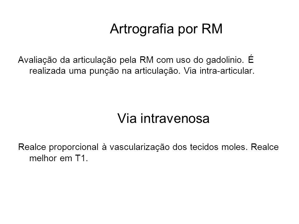 Artrografia por RM Avaliação da articulação pela RM com uso do gadolinio. É realizada uma punção na articulação. Via intra-articular. Via intravenosa