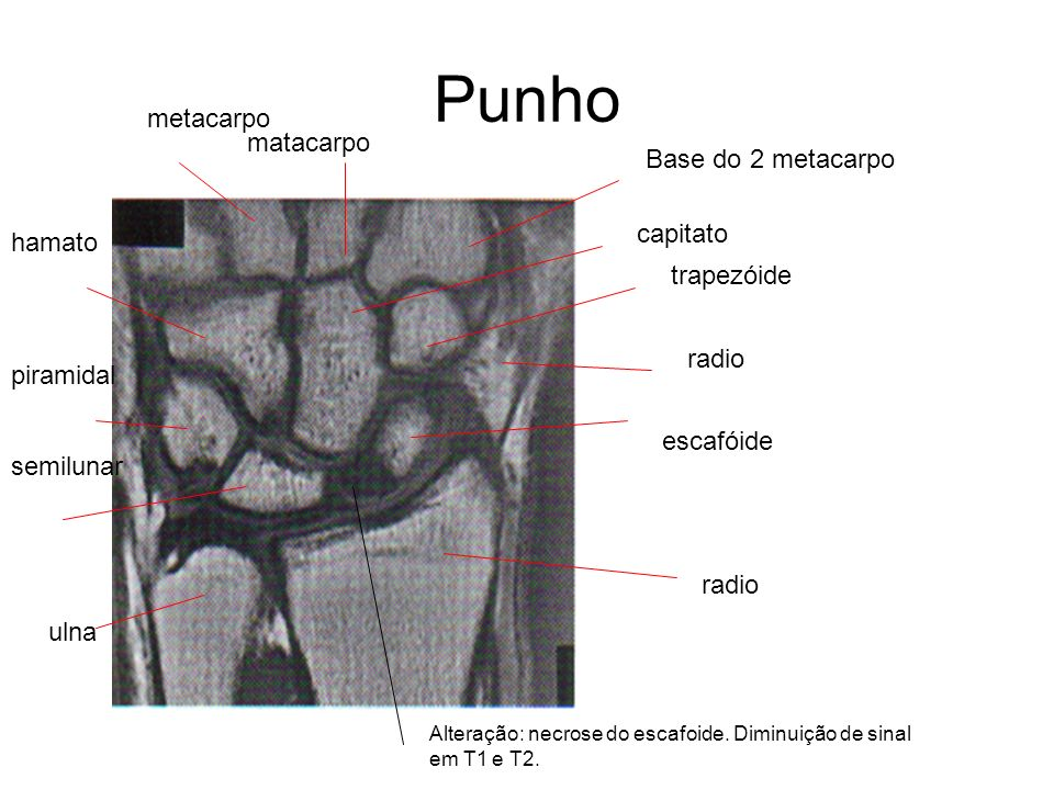 Punho radio escafóide piramidal semilunar ulna Base do 2 metacarpo capitato trapezóide radio metacarpo matacarpo hamato Alteração: necrose do escafoid