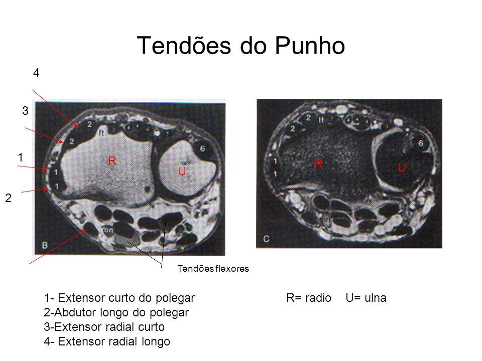 Tendões do Punho R U U R 1- Extensor curto do polegar R= radio U= ulna 2-Abdutor longo do polegar 3-Extensor radial curto 4- Extensor radial longo 2 1