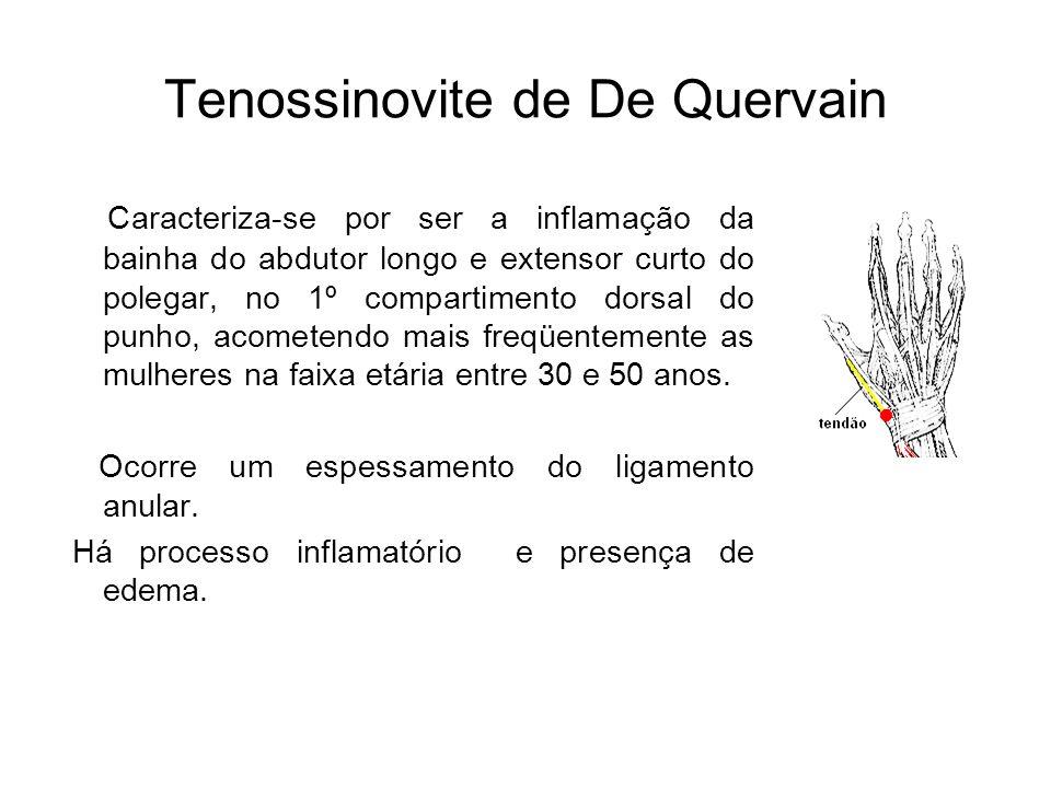 Tenossinovite de De Quervain Caracteriza-se por ser a inflamação da bainha do abdutor longo e extensor curto do polegar, no 1º compartimento dorsal do