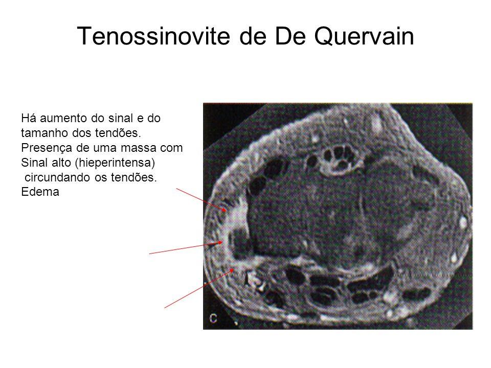 Tenossinovite de De Quervain Há aumento do sinal e do tamanho dos tendões. Presença de uma massa com Sinal alto (hieperintensa) circundando os tendões