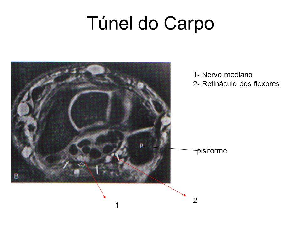 Túnel do Carpo 1 1- Nervo mediano 2- Retináculo dos flexores 2 pisiforme