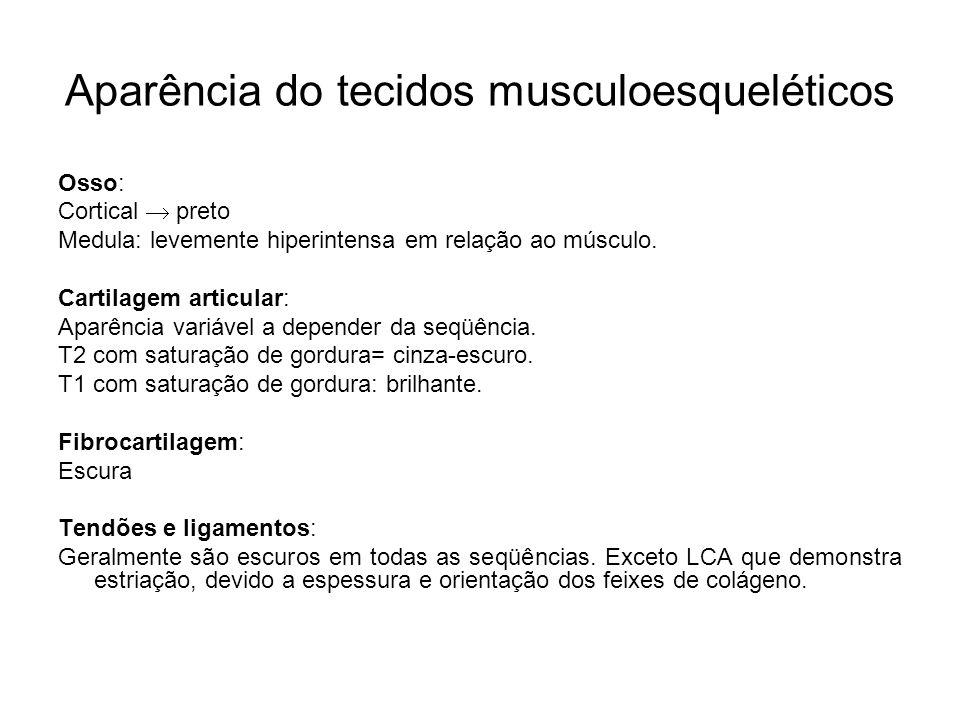 Aparência do tecidos musculoesqueléticos Osso: Cortical preto Medula: levemente hiperintensa em relação ao músculo. Cartilagem articular: Aparência va