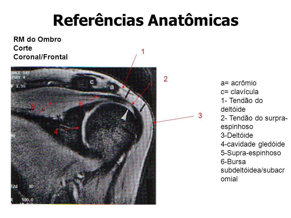 Referências Anatômicas RM do Ombro Corte Coronal/Frontal 1 2 3 4 5 6 a= acrômio c= clavícula 1- Tendão do deltóide 2- Tendão do surpra- espinhoso 3-De