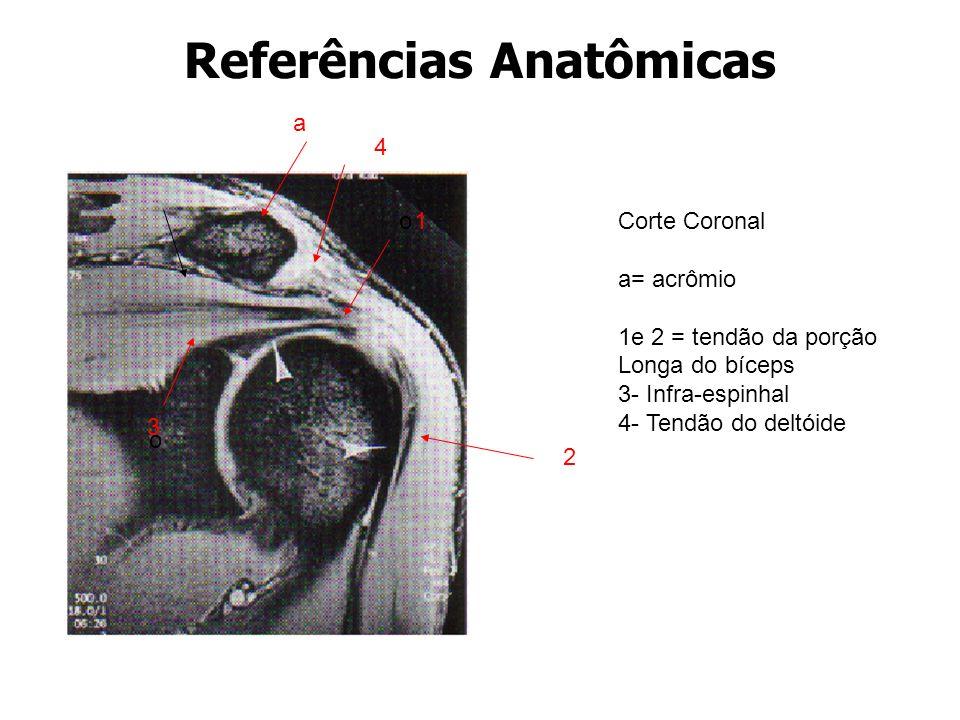 Referências Anatômicas 2 Corte Coronal a= acrômio 1e 2 = tendão da porção Longa do bíceps 3- Infra-espinhal 4- Tendão do deltóide o o a 1 3 4