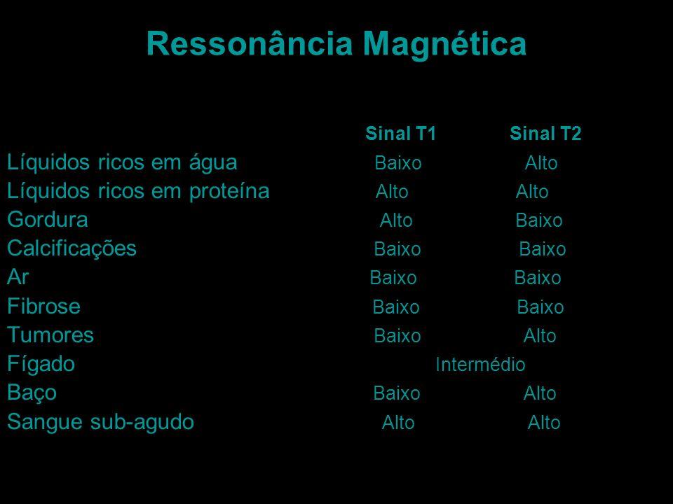 Ressonância Magnética Sinal T1 Sinal T2 Líquidos ricos em água Baixo Alto Líquidos ricos em proteína Alto Alto Gordura Alto Baixo Calcificações Baixo