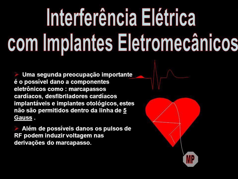 Uma segunda preocupação importante é o possível dano a componentes eletrônicos como : marcapassos cardíacos, desfibriladores cardíacos implantáveis e