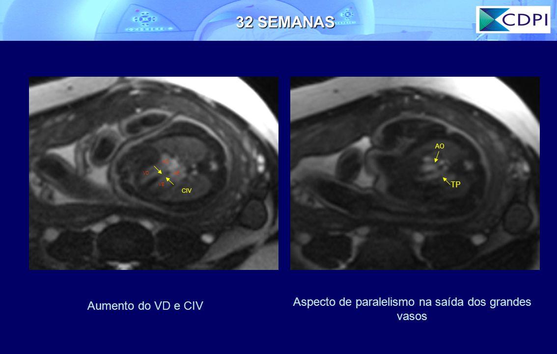 AD AEVD VE CIV AO TP 32 SEMANAS Aspecto de paralelismo na saída dos grandes vasos Aumento do VD e CIV