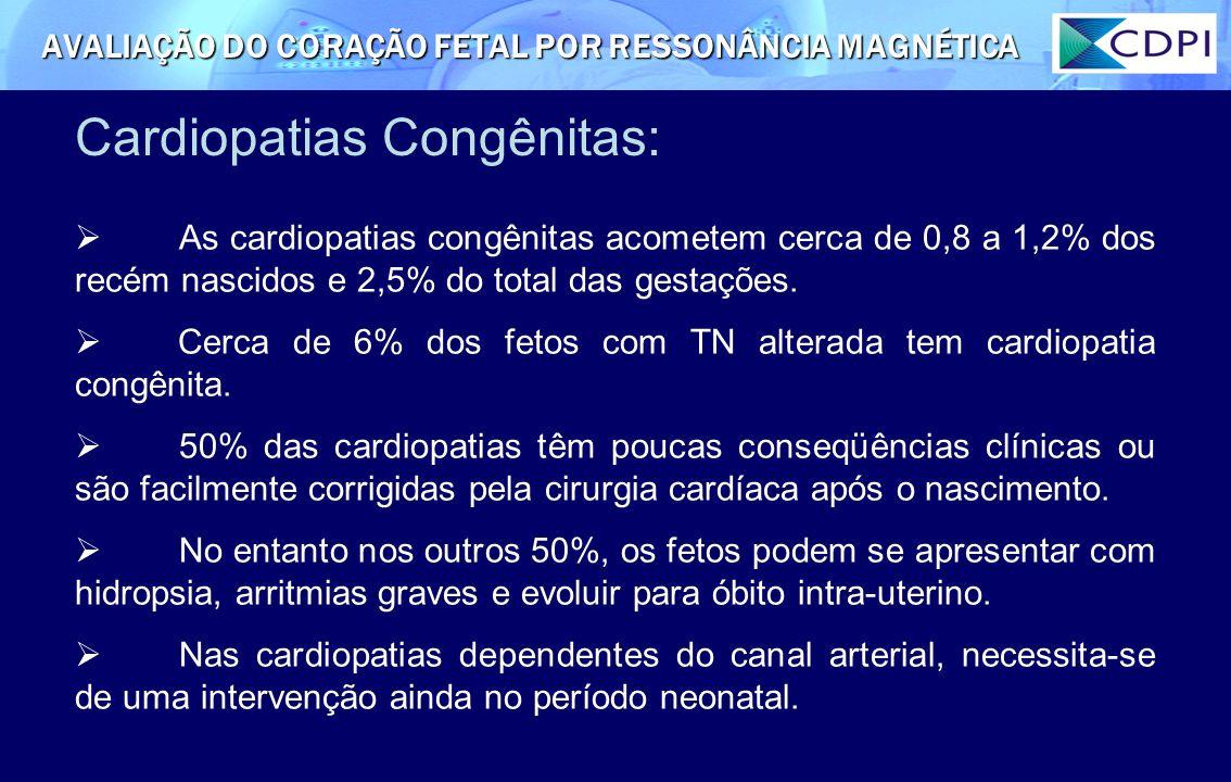 Cardiopatias Congênitas: AVALIAÇÃO DO CORAÇÃO FETAL POR RESSONÂNCIA MAGNÉTICA As cardiopatias congênitas acometem cerca de 0,8 a 1,2% dos recém nascid