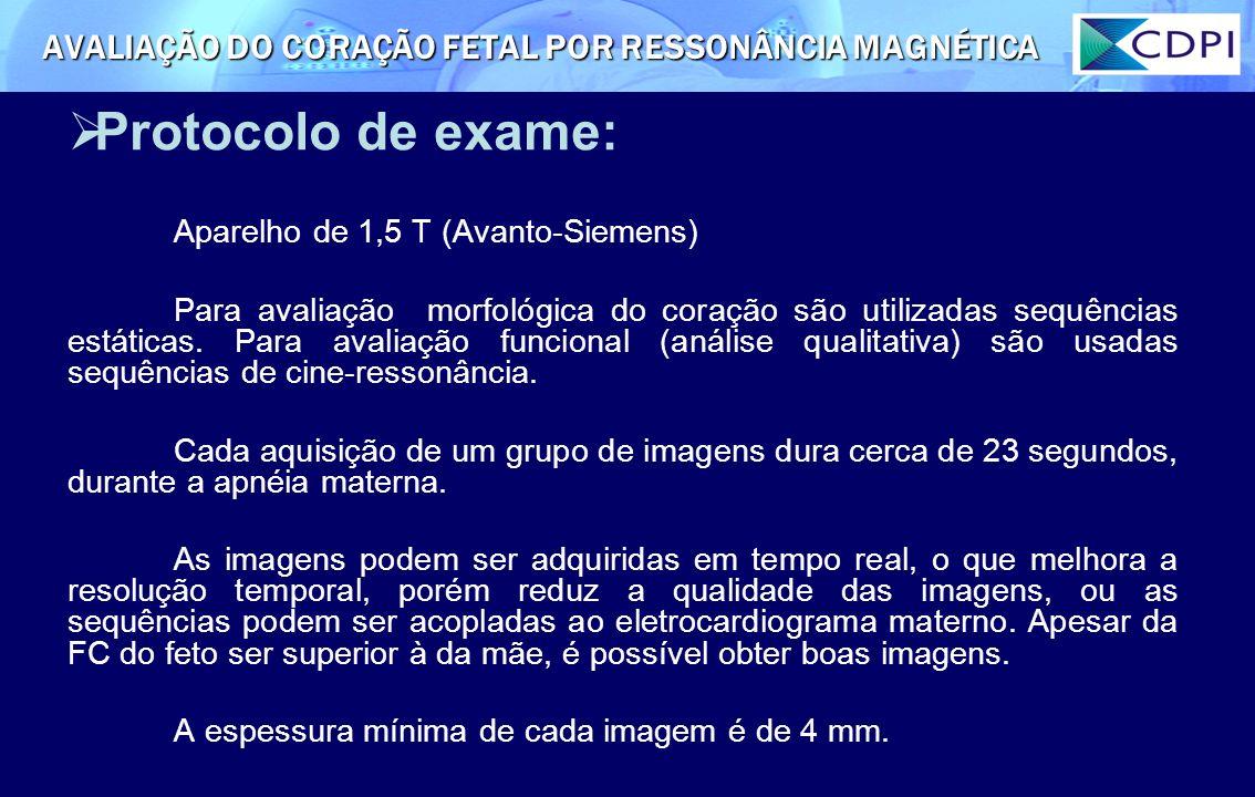 Protocolo de exame: Aparelho de 1,5 T (Avanto-Siemens) Para avaliação morfológica do coração são utilizadas sequências estáticas. Para avaliação funci