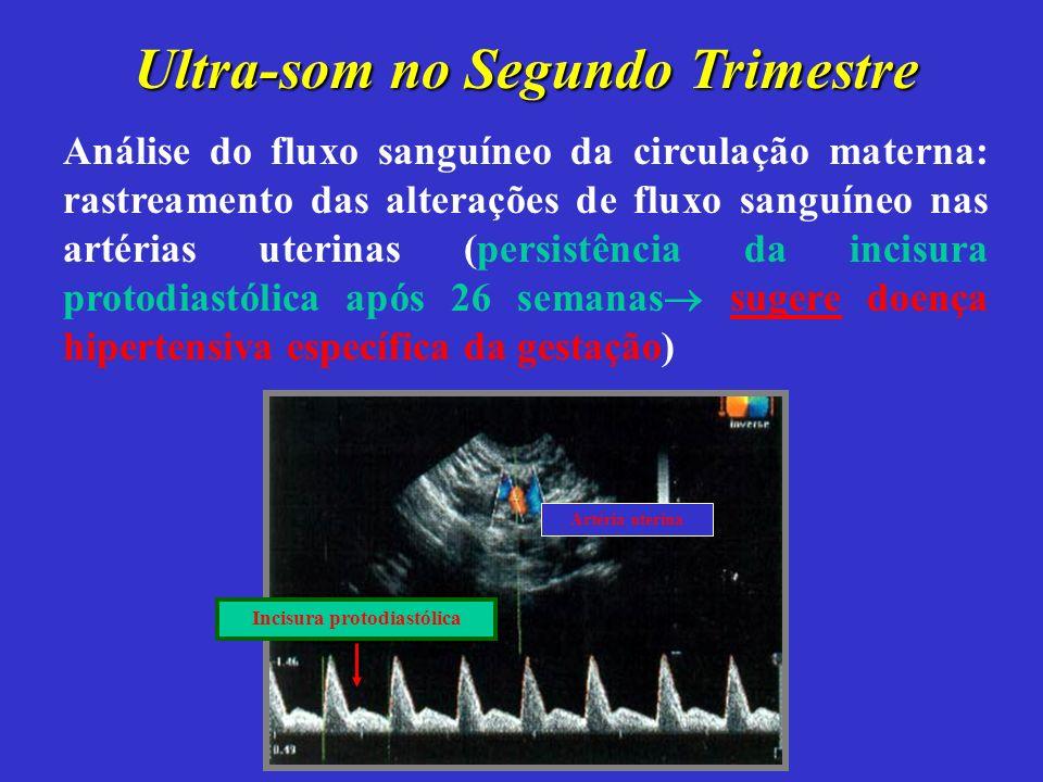 Ultra-som no Segundo Trimestre Análise do fluxo sanguíneo da circulação materna: rastreamento das alterações de fluxo sanguíneo nas artérias uterinas (persistência da incisura protodiastólica após 26 semanas sugere doença hipertensiva específica da gestação) Artéria uterina Incisura protodiastólica