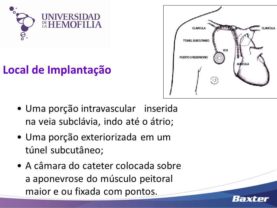 Local de Implantação Uma porção intravascular inserida na veia subclávia, indo até o átrio; Uma porção exteriorizada em um túnel subcutâneo; A câmara