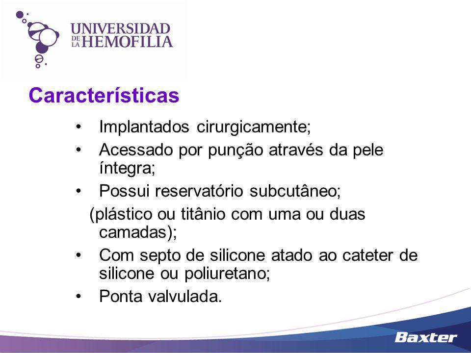 Características Implantados cirurgicamente; Acessado por punção através da pele íntegra; Possui reservatório subcutâneo; (plástico ou titânio com uma