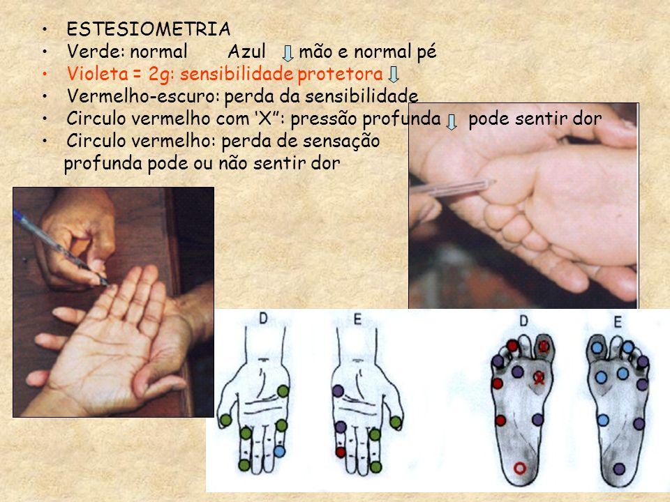 ESTESIOMETRIA Verde: normal Azul mão e normal pé Violeta = 2g: sensibilidade protetora Vermelho-escuro: perda da sensibilidade Circulo vermelho com X: