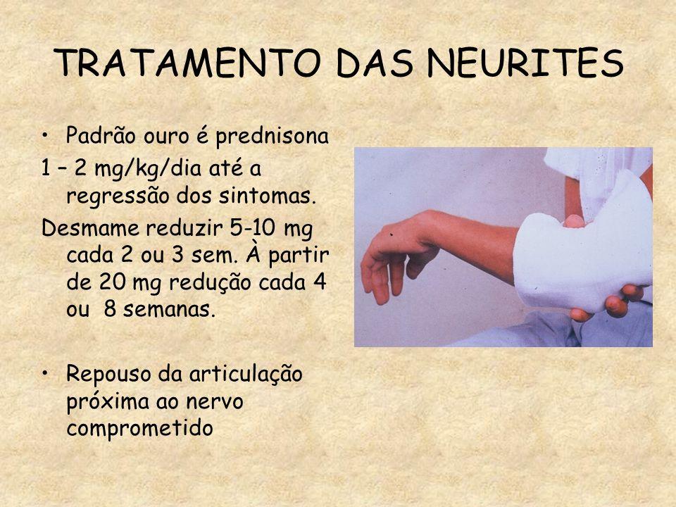 TRATAMENTO DAS NEURITES Padrão ouro é prednisona 1 – 2 mg/kg/dia até a regressão dos sintomas. Desmame reduzir 5-10 mg cada 2 ou 3 sem. À partir de 20