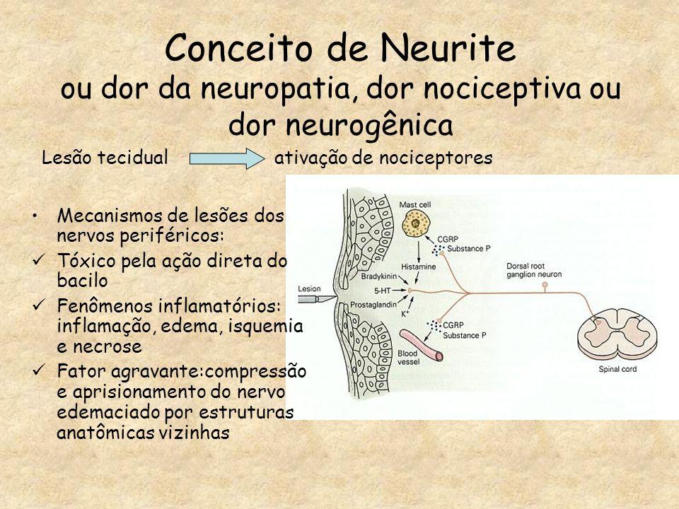 Conceito de Neurite ou dor da neuropatia, dor nociceptiva ou dor neurogênica Mecanismos de lesões dos nervos periféricos: Tóxico pela ação direta do b