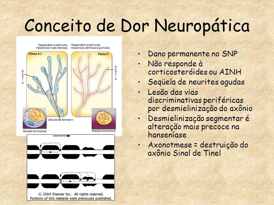 Conceito de Dor Neuropática Dano permanente no SNP Não responde à corticosteróides ou AINH Seqüela de neurites agudas Lesão das vias discriminativas p