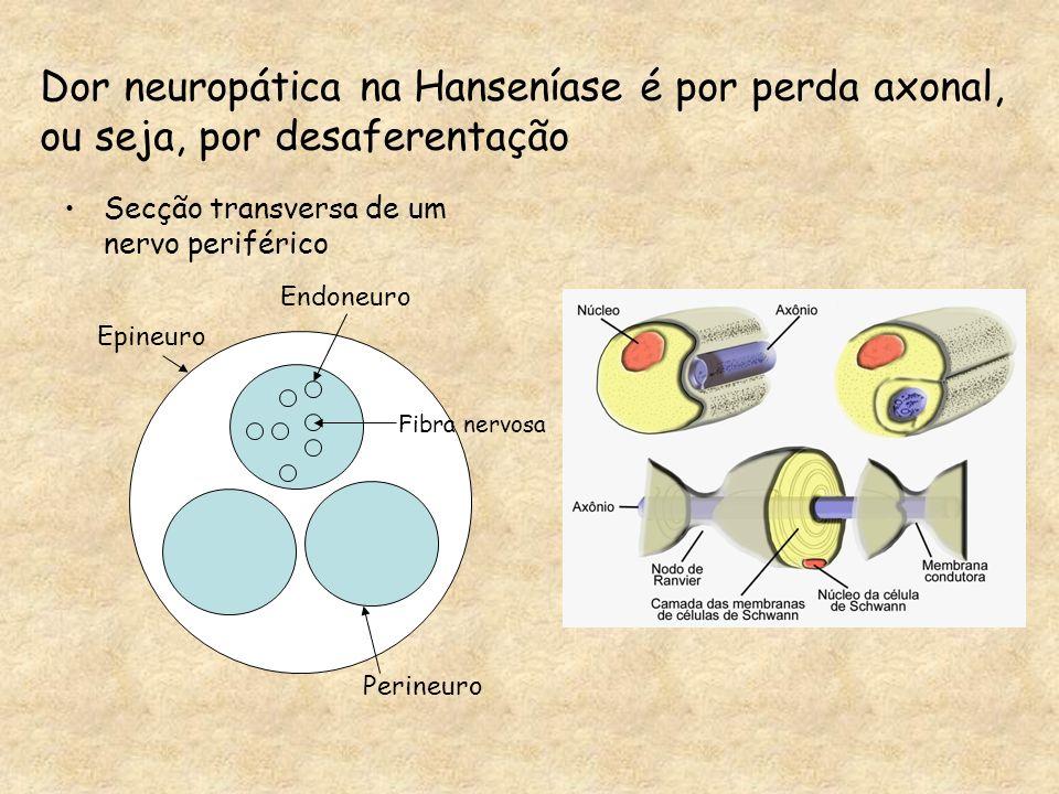Secção transversa de um nervo periférico Epineuro Endoneuro Perineuro Dor neuropática na Hanseníase é por perda axonal, ou seja, por desaferentação Fi