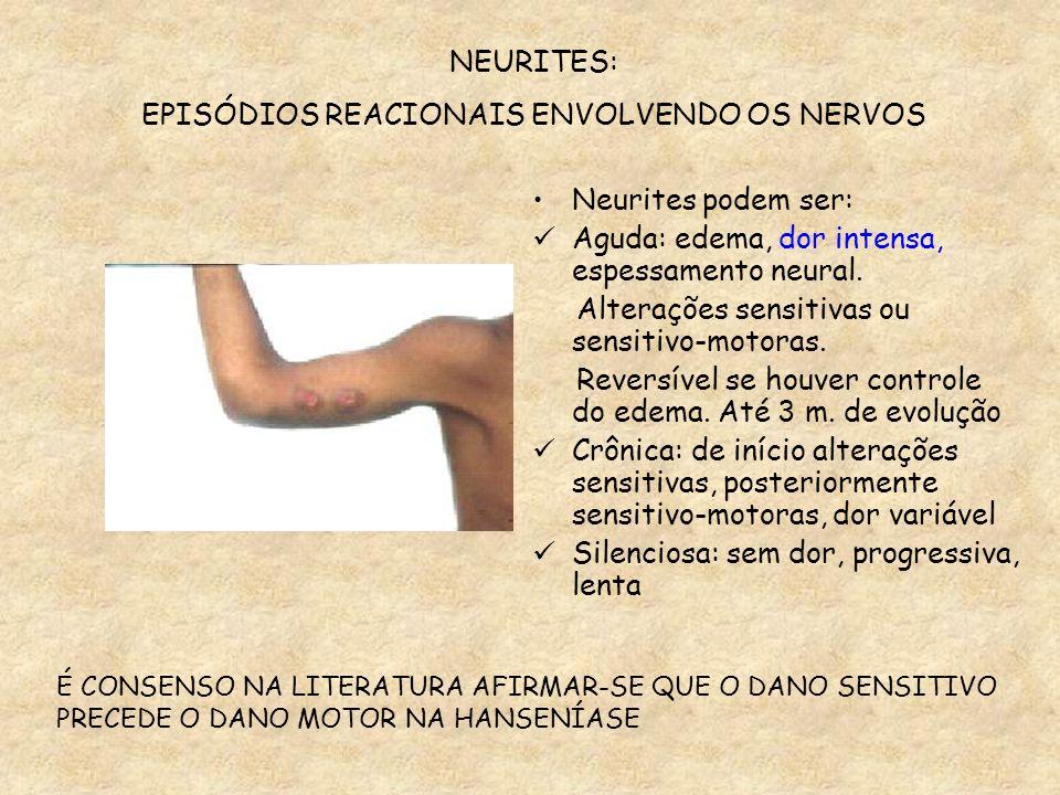 NEURITES: EPISÓDIOS REACIONAIS ENVOLVENDO OS NERVOS Neurites podem ser: Aguda: edema, dor intensa, espessamento neural. Alterações sensitivas ou sensi