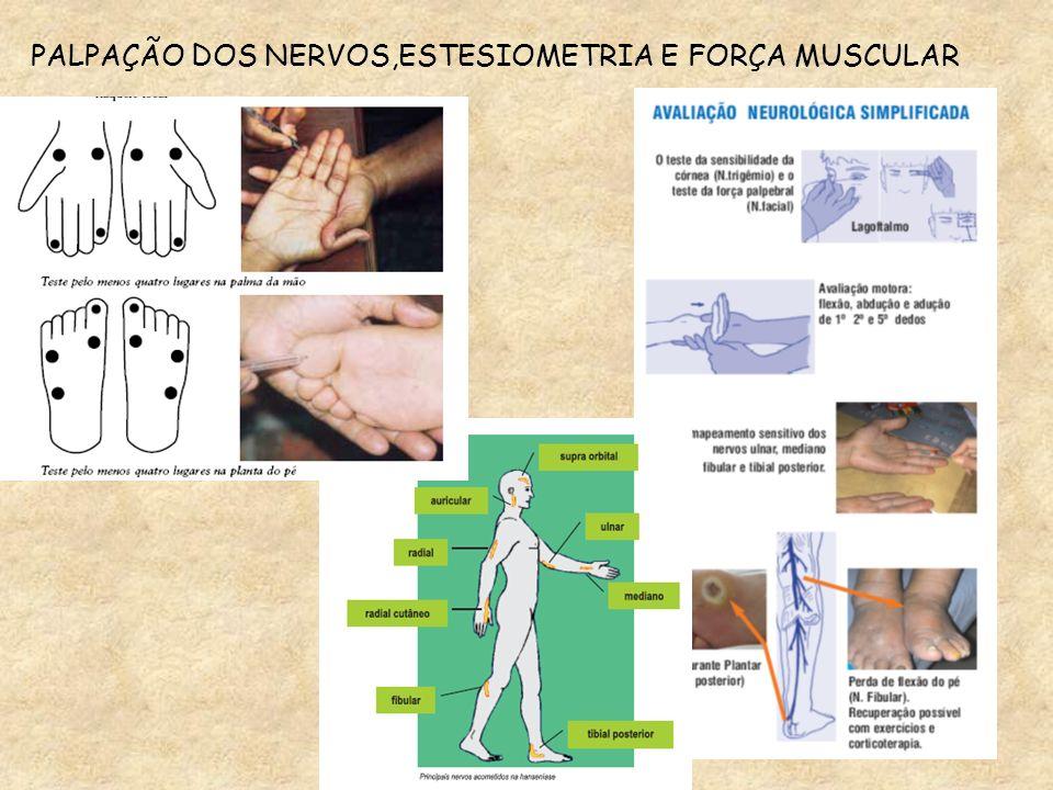 Palpação dos troncos nervosos: volume,consistência, forma, mobilidade Mapeamento sensitivo Teste da força muscular DIAGNÓSTICO DAS NEURITES: