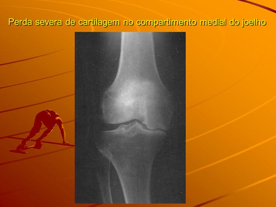 Perda severa de cartilagem no compartimento medial do joelho