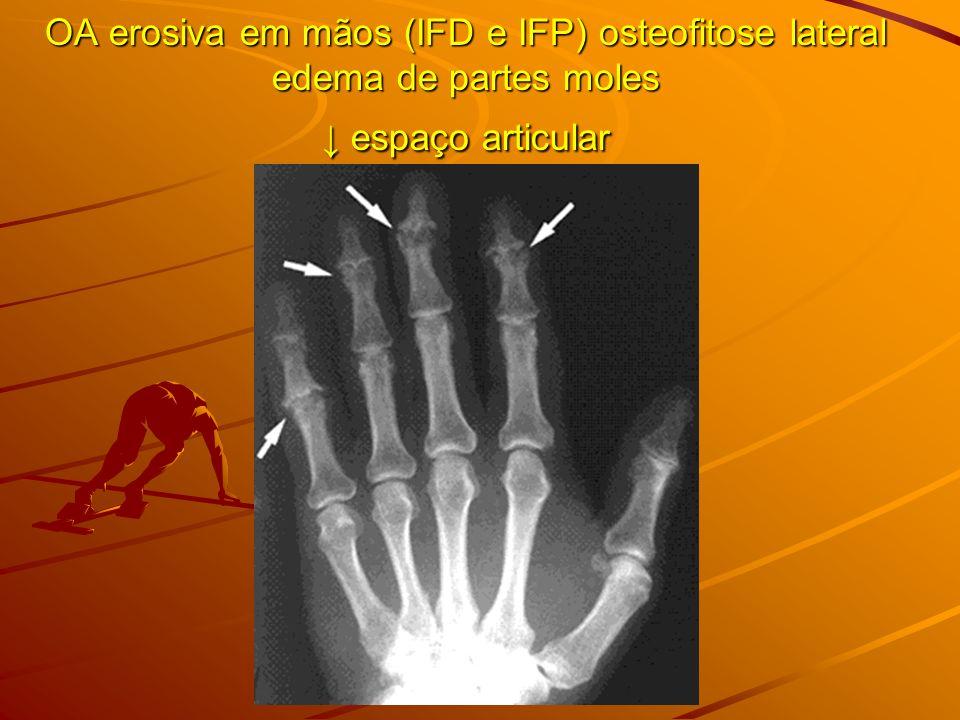 OA erosiva em mãos (IFD e IFP) osteofitose lateral edema de partes moles espaço articular