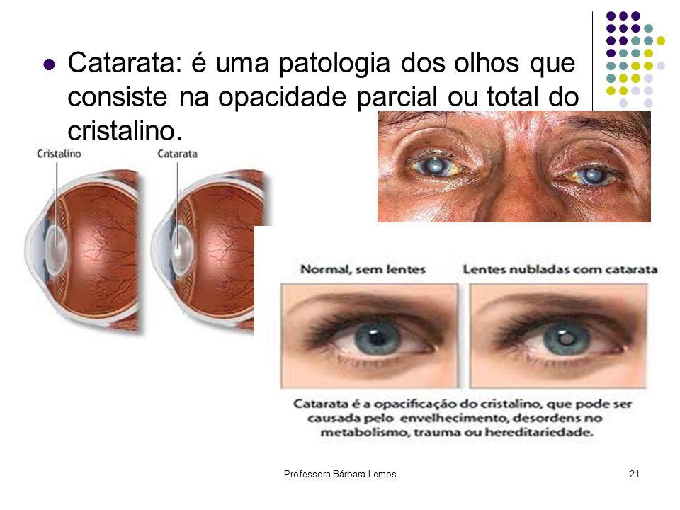 Professora Bárbara Lemos21 Catarata: é uma patologia dos olhos que consiste na opacidade parcial ou total do cristalino.