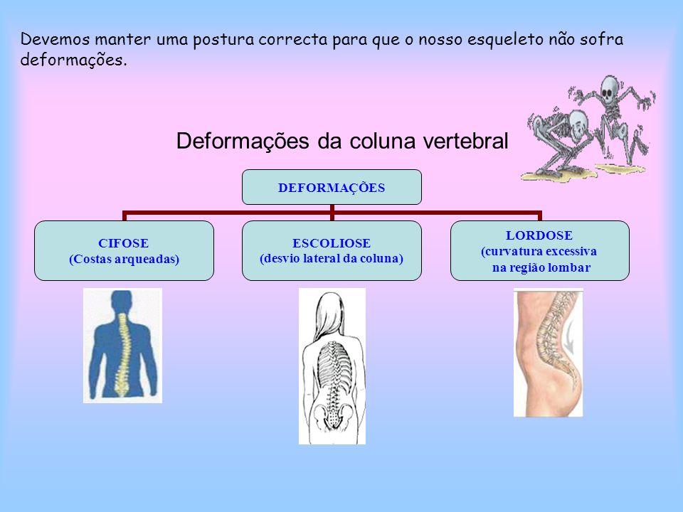 Deformações da coluna vertebral DEFORMAÇÕES CIFOSE (Costas arqueadas) ESCOLIOSE (desvio lateral da coluna) LORDOSE (curvatura excessiva na região lomb
