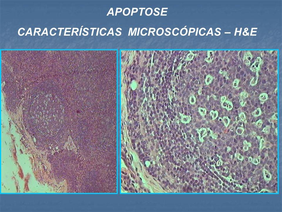APOPTOSE CARACTERÍSTICAS MICROSCÓPICAS – H&E