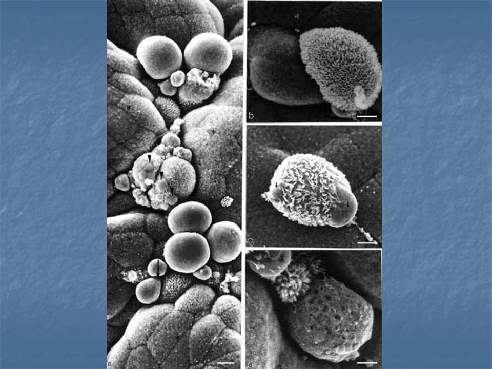 CARACTERÍSTICASNECROSEAPOPTOSE EstímuloPatológicoFisológico ou Patológico OcorrênciaGrupo de CélulasCélulas Individuais ReversibilidadeIrreversível Ativação de EndonucleasesNãoSim Liberação de Enzimas Lisossomais SimNão Inflamação ExsudativaPresenteAusente Alterações NuclearesPresentePresente (Cariorrexe) Morfologia Tumefação e Lise Celular Corpos Apoptóticos NECROSE E APOPTOSE