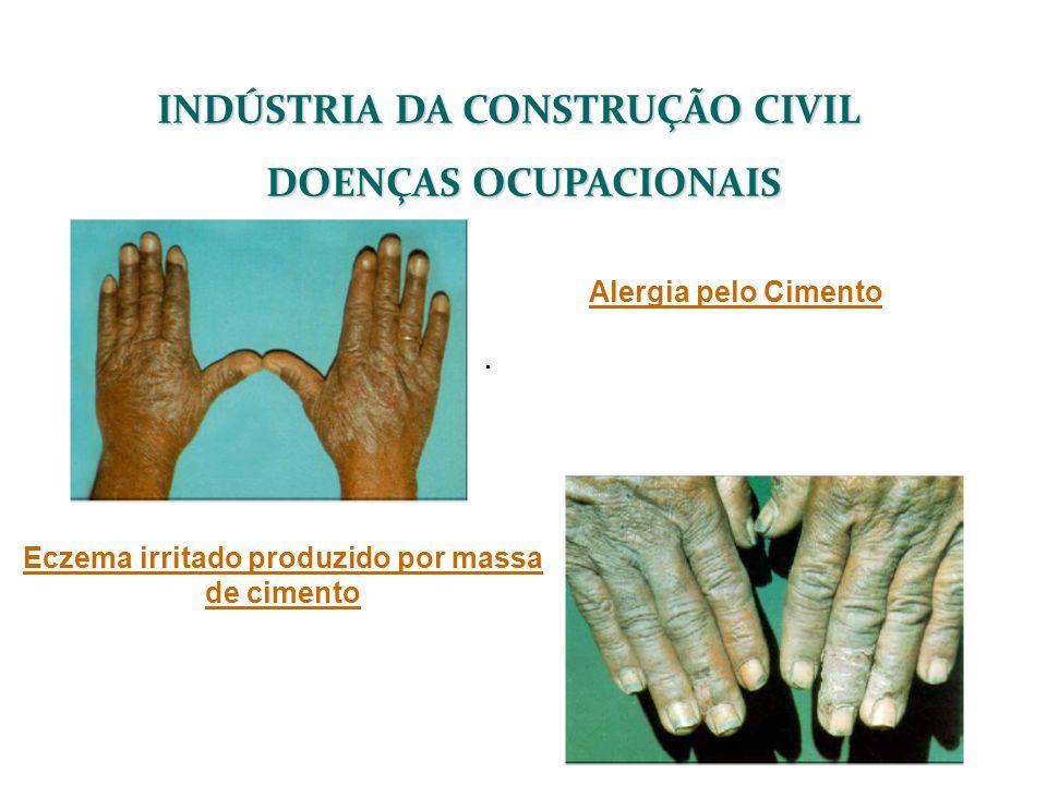 INDÚSTRIA DA CONSTRUÇÃO CIVIL DOENÇAS OCUPACIONAIS Alergia pelo Cimento. Eczema irritado produzido por massa de cimento