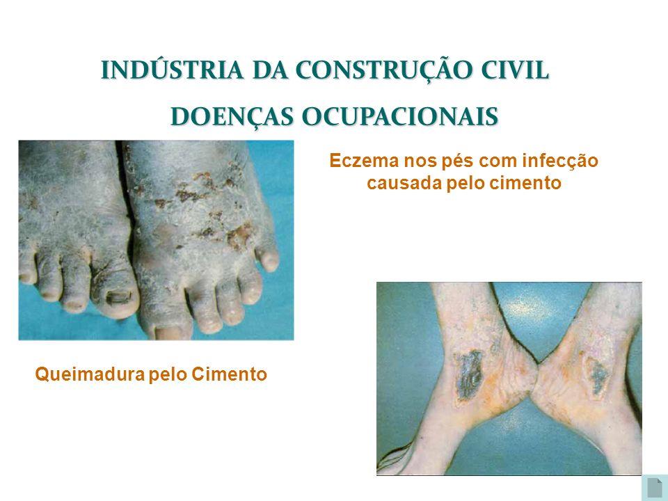 INDÚSTRIA DA CONSTRUÇÃO CIVIL DOENÇAS OCUPACIONAIS Eczema nos pés com infecção causada pelo cimento Queimadura pelo Cimento