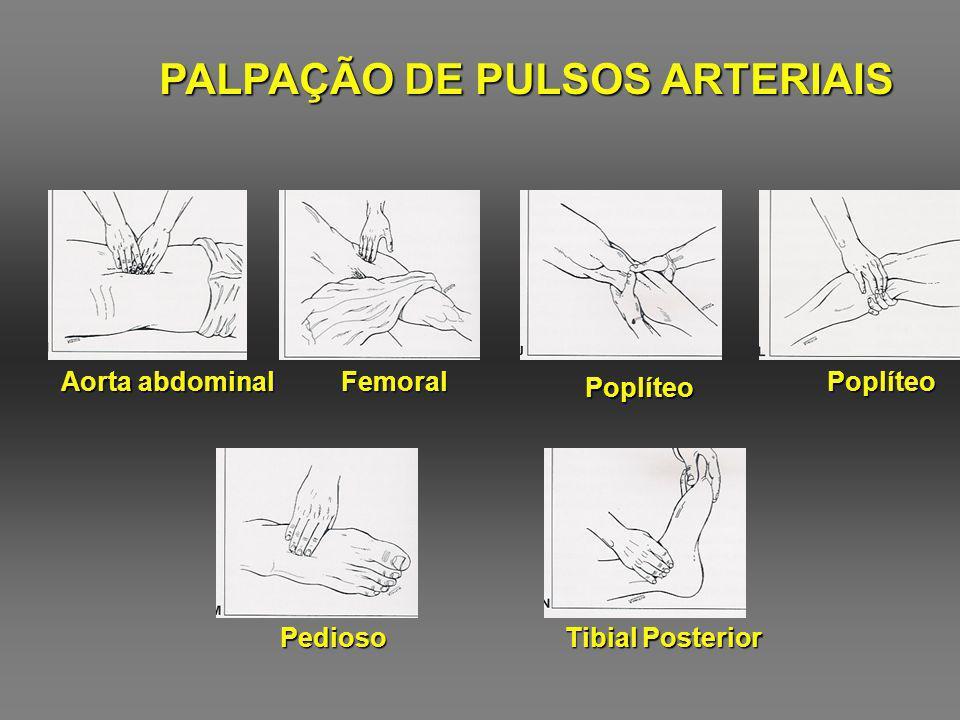 PALPAÇÃO DE PULSOS ARTERIAIS Aorta abdominal Femoral Poplíteo Poplíteo Tibial Posterior Pedioso
