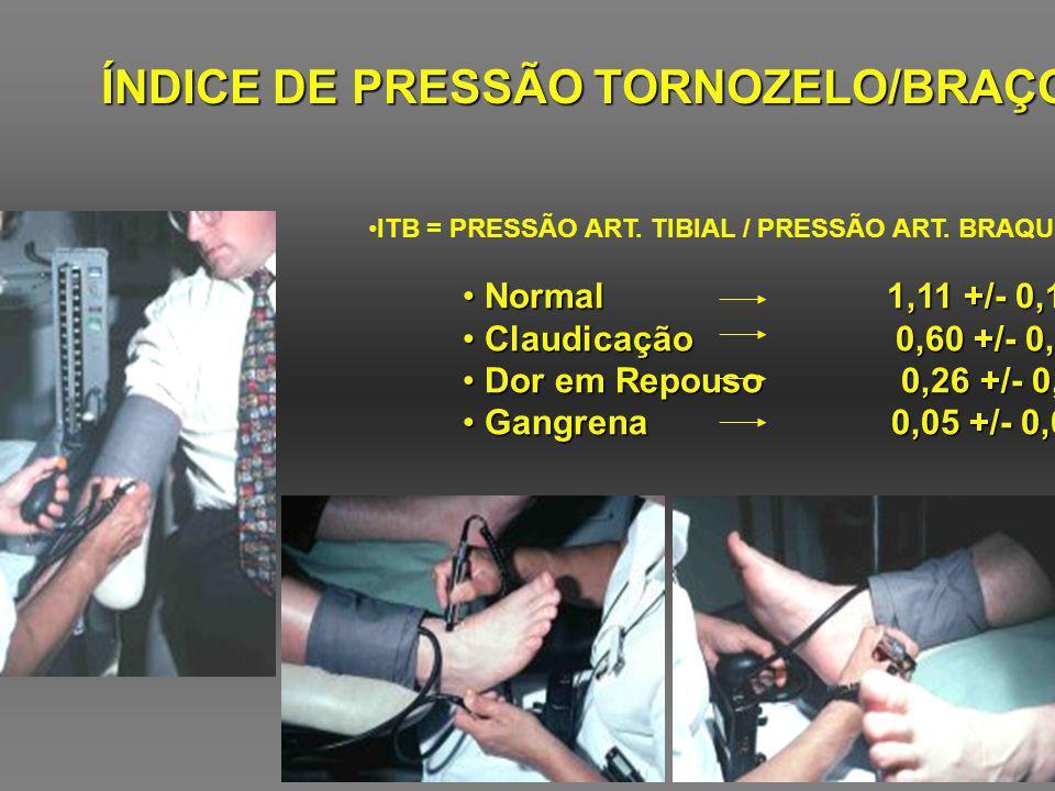 ÍNDICE DE PRESSÃO TORNOZELO/BRAÇO ITB = PRESSÃO ART. TIBIAL / PRESSÃO ART. BRAQUIAL Normal 1,11 +/- 0,10 Normal 1,11 +/- 0,10 Claudicação 0,60 +/- 0,1